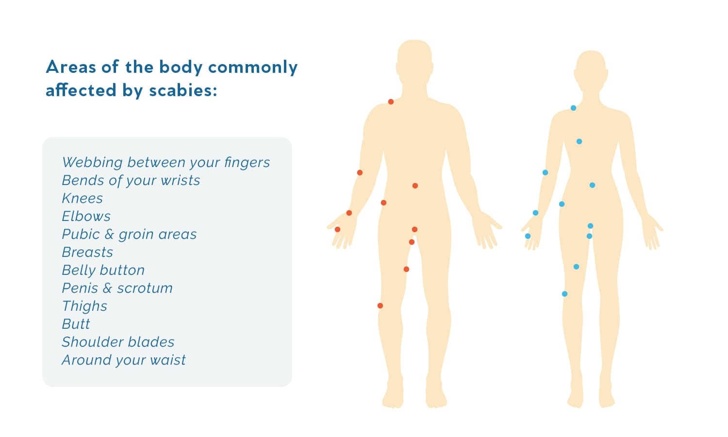 An illustration that shows all of the areas on the human body where scabies mites can be found.