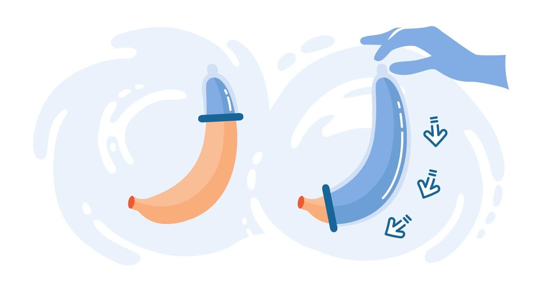 Cartoon of an external condom being applied to a banana