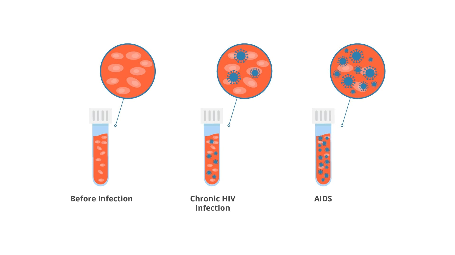 Side by side comparison of cells prior to infection, during chronic HIV infection, and once someone has developed AIDS.
