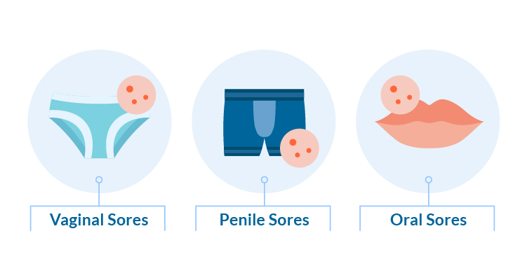 the types of STD sores including vaginal sores, penile sores and oral sores
