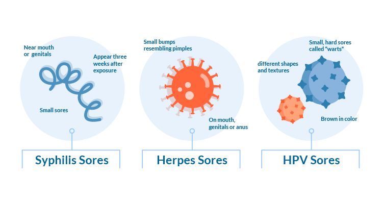 diagram detailing features of STDs that cause sores. syphilis sores commonly appear near the mouth or genitals as small sores about 3 weeks after exposure. herpes sores can resemble pimples and are often around the mouth, genitals or anus. HPV sores are commonly different shapes, small, hard and brown in color